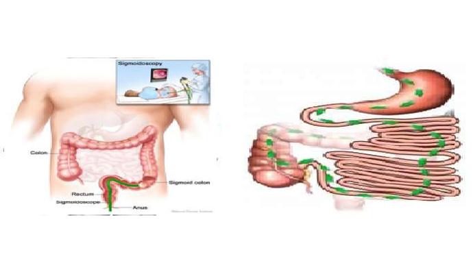 Amoebic Colitis