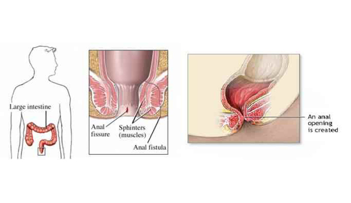 Fistulas And Anal Fissures