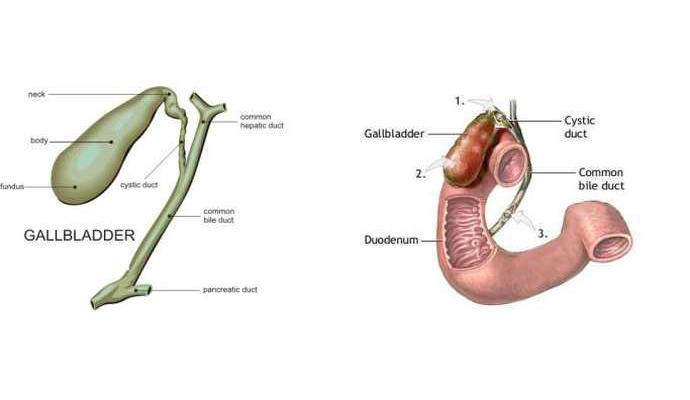 Gallbladder Gangrene