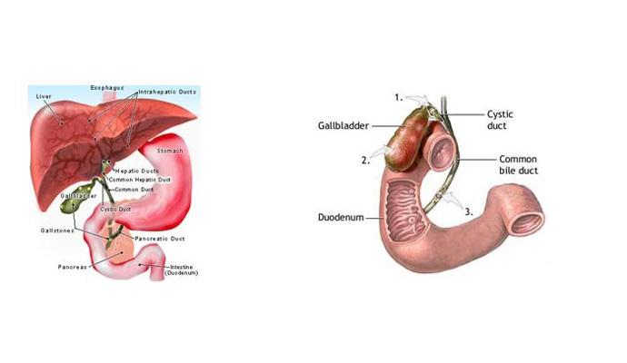 Gangrene Of Gallbladder