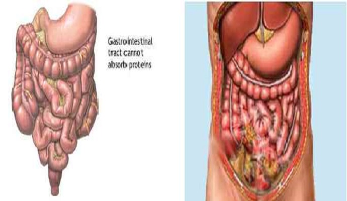 Gastrointestinal Perforation And Peritonitis