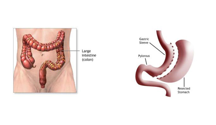 Intestines Bypass Operations