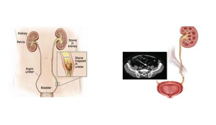 Ureteric Stone