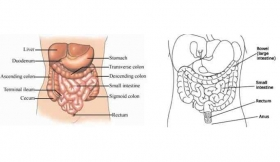 Bowel Perforations