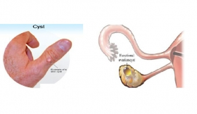 Cysts Operation all Cysts And Over Growths