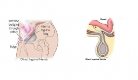Direct Inguinal Hernia Surgery