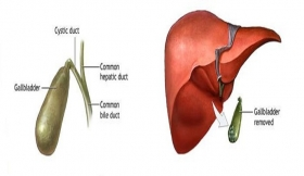 Gallbladder Diseases