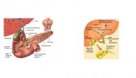 Gallstone Colic