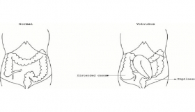 Gaseous Distension of The Abdomen