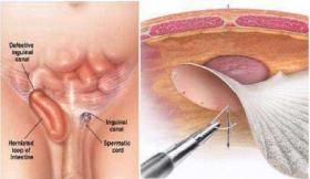 Hernia Surgeries