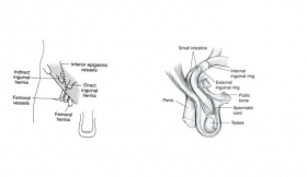 Indirect Inguinal Hernia Surgery