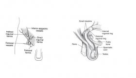Indirect Inguinal Hernia Surgery