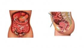 Intestinal Adhesions Tubercular