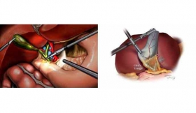 Laparoscopic cholecystectomy