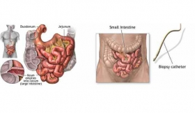 Small Bowel Perforations